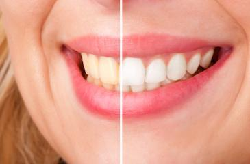 before and after teeth whitening picture in west chester