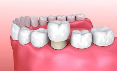 image of a dental bridge in west chester