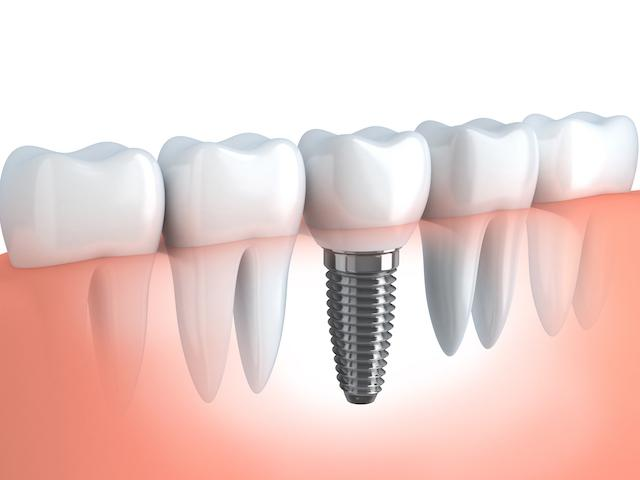 dental implants west chester oh