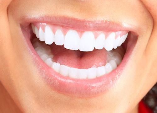 dental implants | west chester