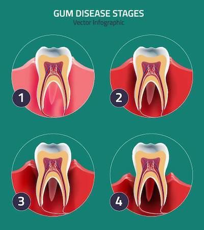 graphic of gum disease in west chester oh