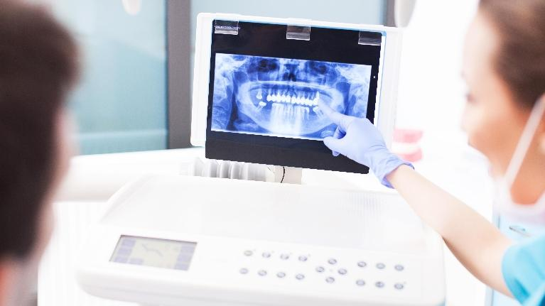 Dentist with X-Ray | Dental Implants in West Chester