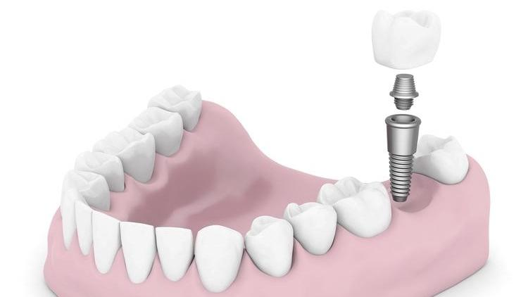 Dental Implants in West Chester OH | Dental Implant Model