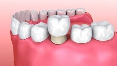 image of a dental crown in west chester